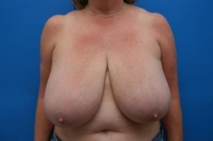 Simply Breasts